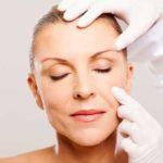 estiramiento-facial-lifting-ritidoplastia
